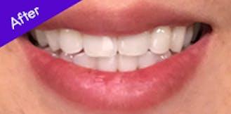 Teeth After Using Burst ToothBrush
