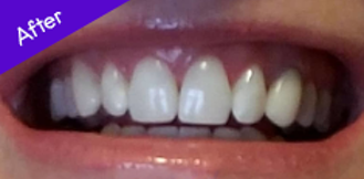 Teeth After Using Burst ToothBrush