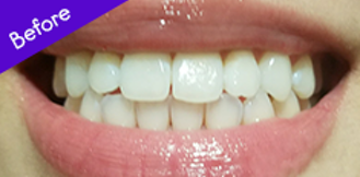 Burst Coconut Whitening Strips Best Teeth Whitening Strips