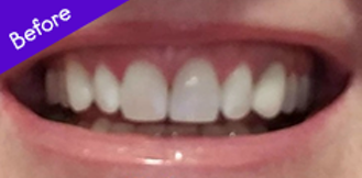 Teeth Before Using Burst ToothBrush